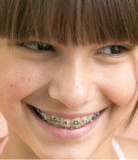 Orthodontiste Marseille Castellane